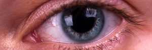 What You Need to Know About the Red Eye
